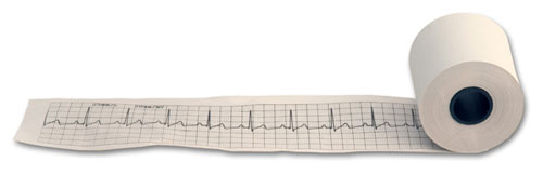 Life Window ECG Paper 55 mm X 30 M Each By Digicare Biomedical
